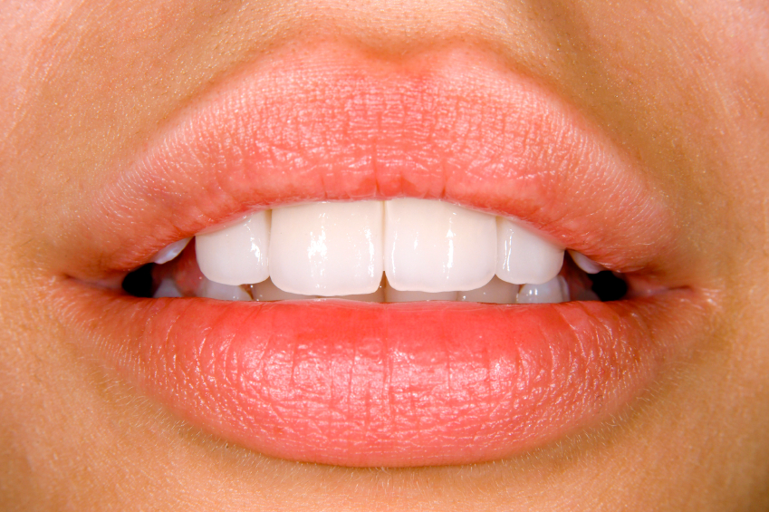 Dental Bonding can keep your teeth nice and bright