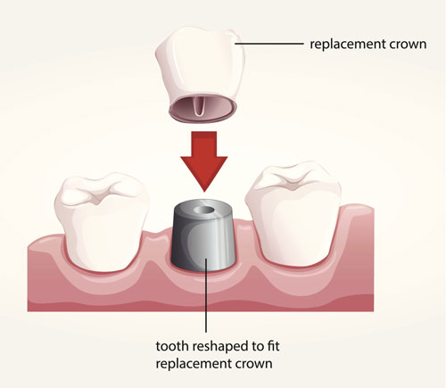 Dental Crown La Jolla Dental example