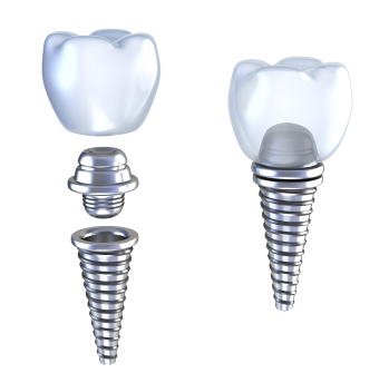 Dental Implants in La Jolla CA