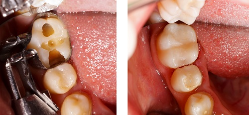 Tooth Colored Fillings in La Jolla CA